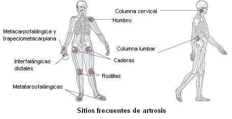 Articulaciones afectadas por la artrosis
