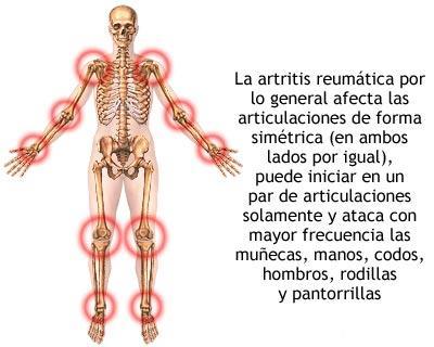 Artritis reumatoide ataca a las articulaciones