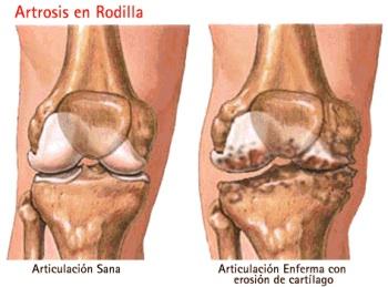 La rodilla es la zona más afectada
