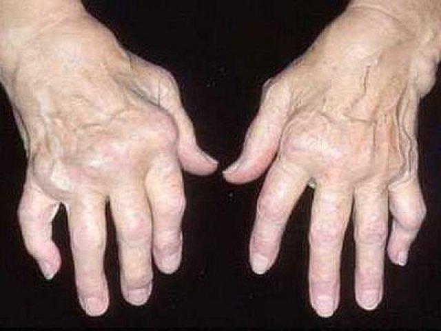 Artrosis. Fuente: radio.rpp.com.pe/saludenrpp