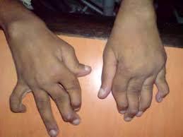 Artritis idiopática juvenil. Fuente: fundarin.org